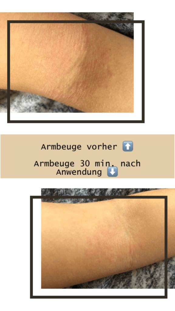 Sanubiom SkinCare Protect bei Neurodermitis: Anwendung in der Armbeuge