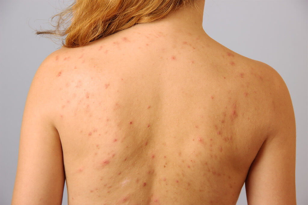 Ist Akne heilbar?
