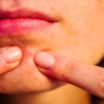 Wie lange dauert eine Akne?