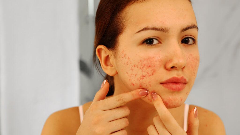 Hat man Akne für immer?