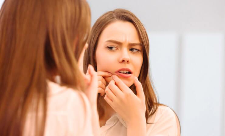Ist Akne wirklich heilbar?