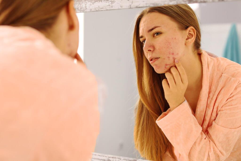 Wer ist von Akne betroffen?