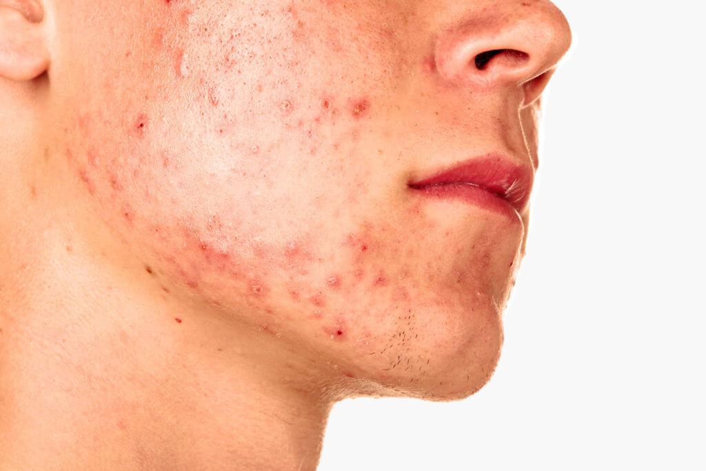 Pickel als sichtbares Akne-Symptom