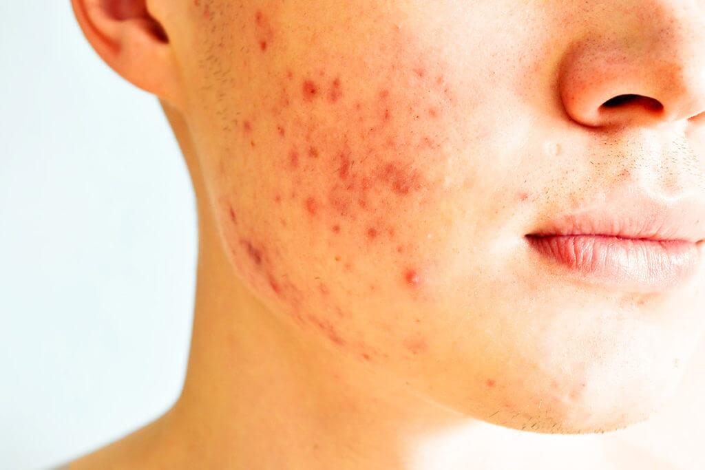 Typische Symptome bei Akne