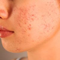 Akne - Was genau ist Akne & was ist die Ursache?