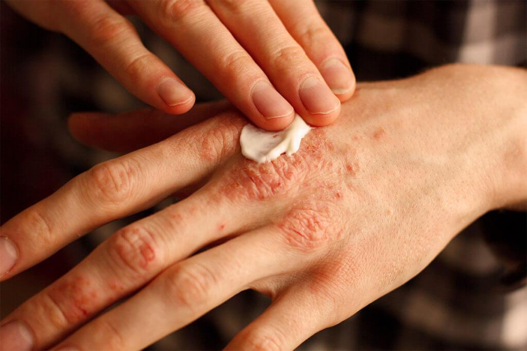 Wie wird Neurodermitis behandelt?