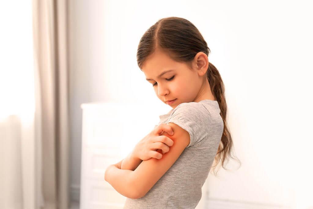 Nicht jeder Juckreiz ist eine atopische Dermatitis