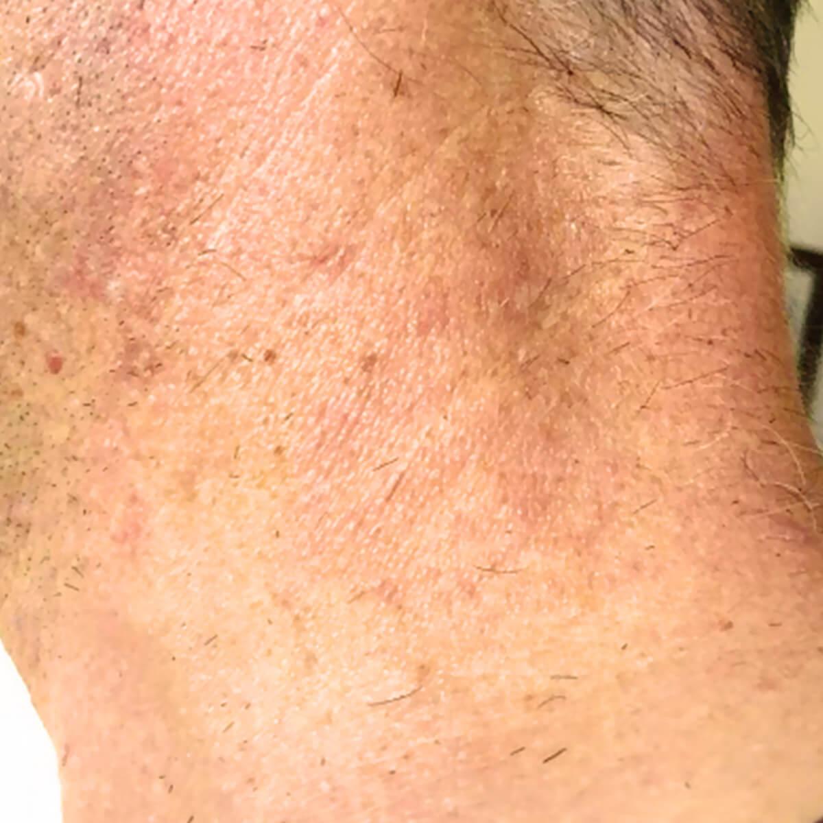 Neurodermitis Vorher-Nachher Vergleich: Nachher