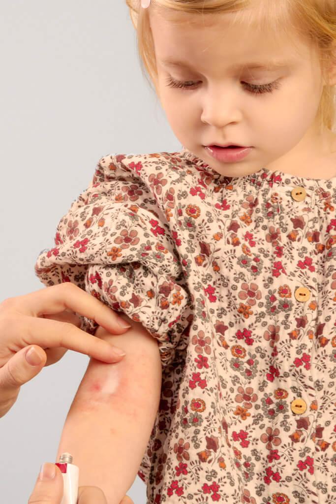 Neurodermitis bei Kindern - Behandlung