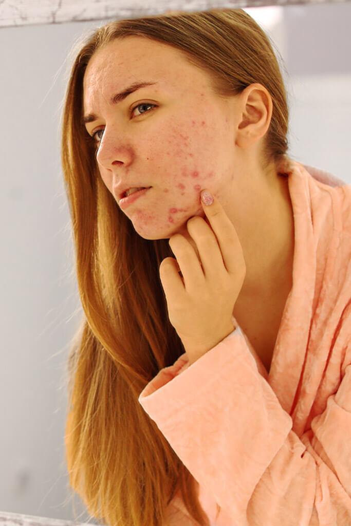 Phagen Anwendung bei Akne