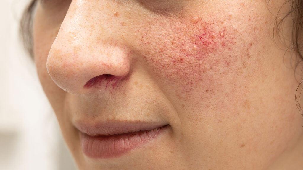 Frau mit Rosacea Symptomen im Gesicht
