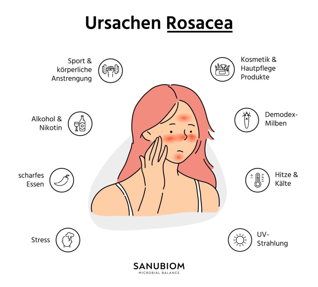 Rosacea Ursachen
