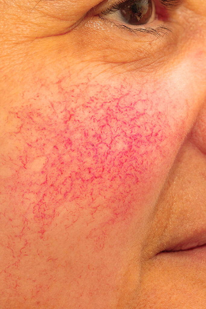 Phagen Anwendung bei Rosacea