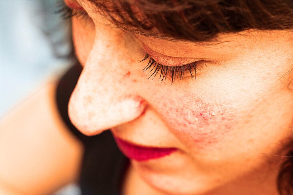 Rosacea - mit den Bakterienfressern ein Gleichgewicht der Haut herstellen