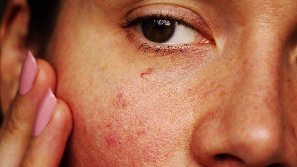 Die überpflegte Haut spannt und kann sich entzünden, wenn nichts gegen die Symptome unternommen wird.
