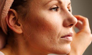 Welches Make Up darf ich bei Rosacea verwenden?