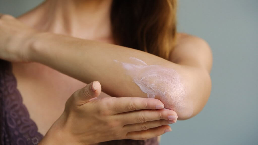 Kühle deine Haut - Hilfe gegen den Juckreiz