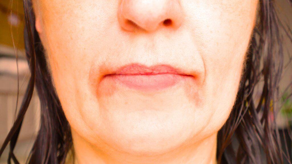 Neurodermitis um den Mund