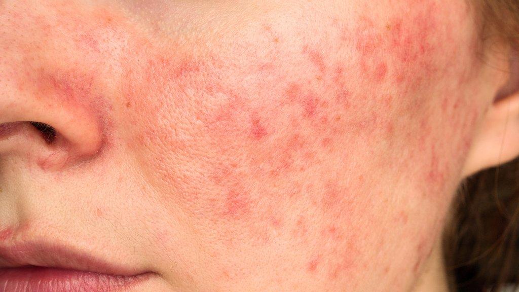 Warum ist Antibiotika bei Rosacea nicht immer sinnvoll?