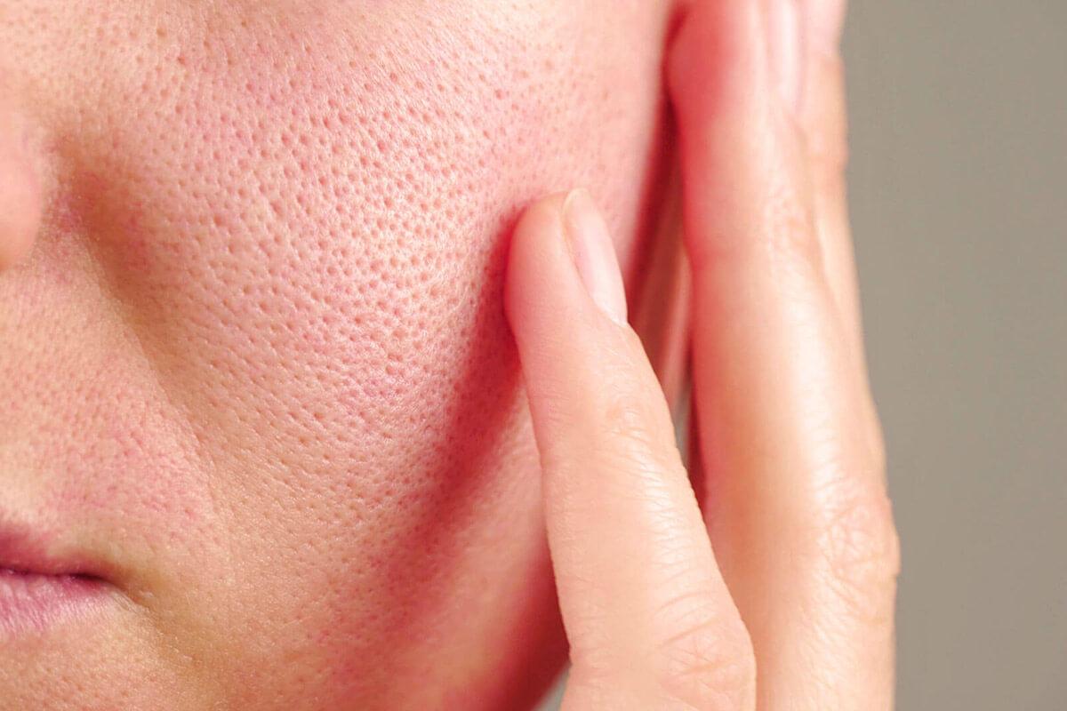 Ursachen von geröteter Gesichtshaut