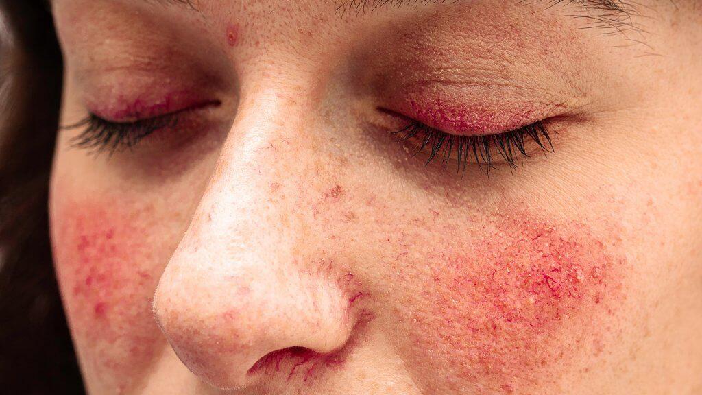 Prävention & Meidung von Reizfaktorenvon Rötungen im Gesicht
