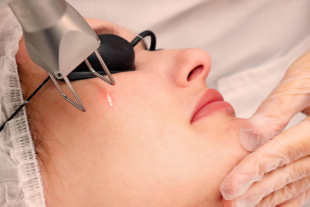 Behandlung von Rötungen im Gesicht mittel Lasertherapie