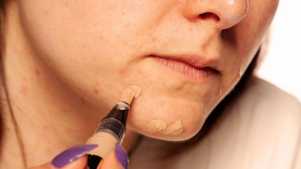Rötungen mittels Make Up kaschieren